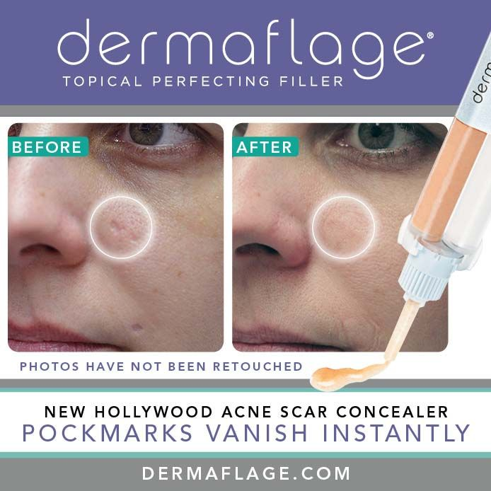 13 Best Images About For Scars On Pinterest Concealer