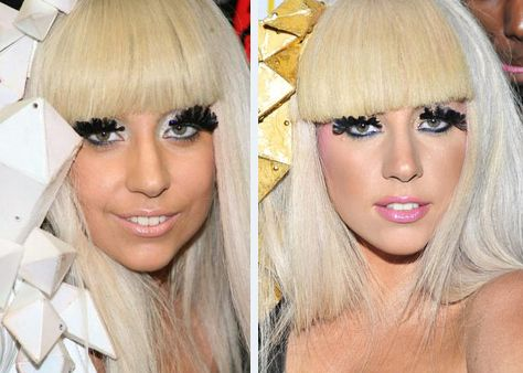 Celebrity Lady Gaga Before And After Nose Job - http://www.celeb-surgery.com/celebrity-lady-gaga-before-and-after-nose-job/?Pinterest