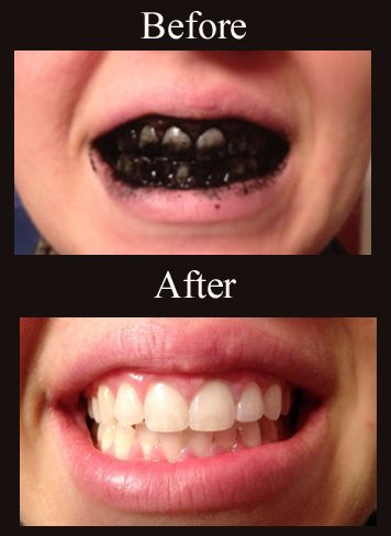 easy way to whiten teeth... it works!
