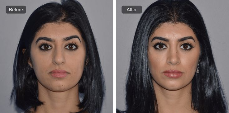 Recovery time to expect for a rhinoplasty?