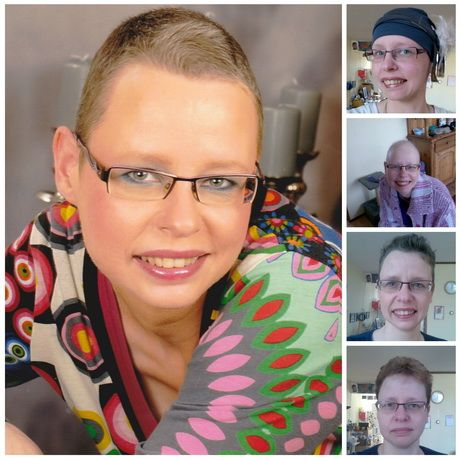 Korte kapsels na chemo