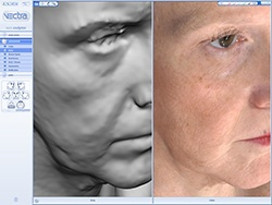 Vectra 3-D imaging is great for facelifts and facial fillers too. Facial contour change can be evaluated by color changes like a topographical map. We can even quantify aesthetic changes using this advanced 3-D computer imaging software.