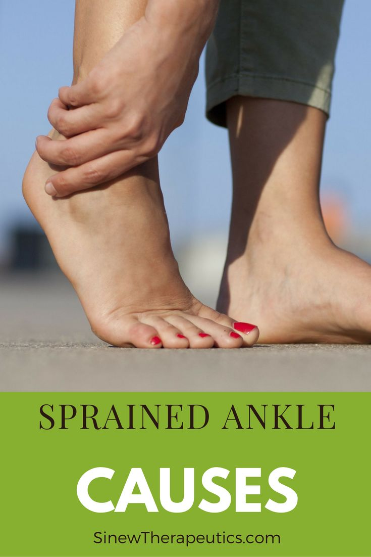 A Grade 3 is the most severe ankle sprain and indicates significant damage with ankle instability. The ligament is actually torn. Learn more about a Sprained Ankle at SinewTherapeutics.com