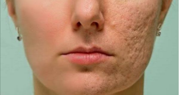Une peau propre est quelque chose que chacun veut atteindre et qui est pourquoi les gens dépensent beaucoup d'argent sur les traitements et produits qui ne fonctionnent généralement pas cher. Heureusement pour vous, dans cet article, nous allons vous...
