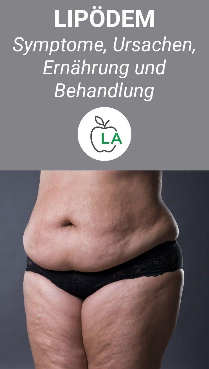 abnehmen am bauch fettverteilungsstörung