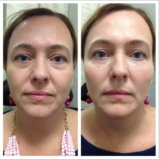 Under eye dermal fillers and immediate side effect of small blebs seen. This will settle with massage.