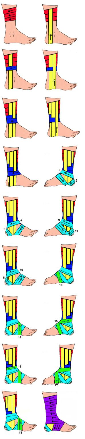 Ankle Taping with basket weave, double heel lock, figure eight wraps. Click through for written descriptions.