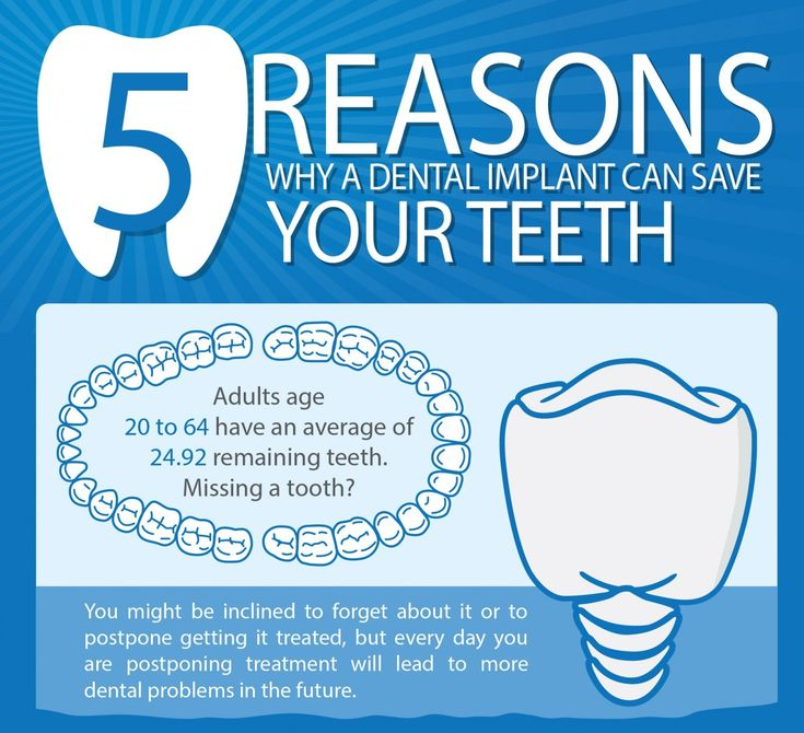 dental implants can save your teeth.