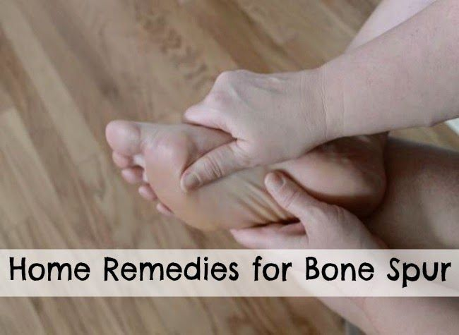 How to dissolve bone spurs naturally