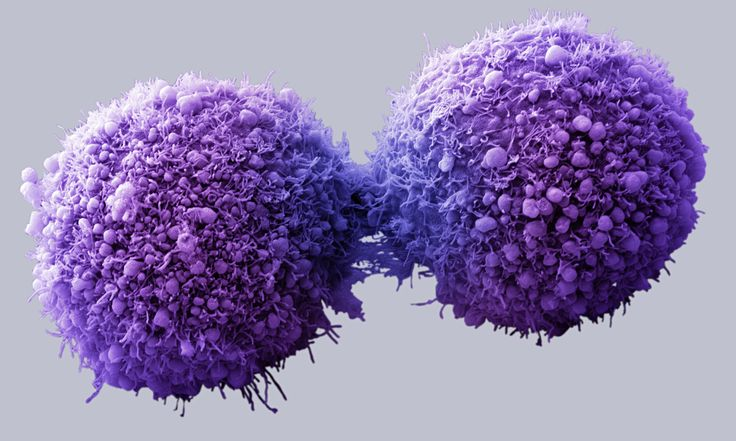 Watch What Happens When Cannabis Is Injected Into Cancer Cells. This Is Mind Blowing!