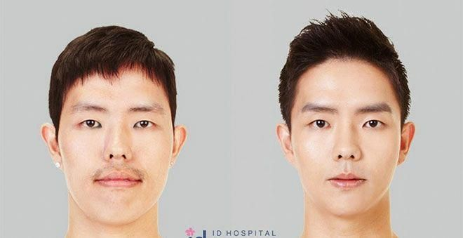 Before And After Surgery Faces 607493437216013520 Beforeafter Pics