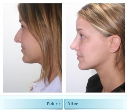 Best facial surgeons toronto