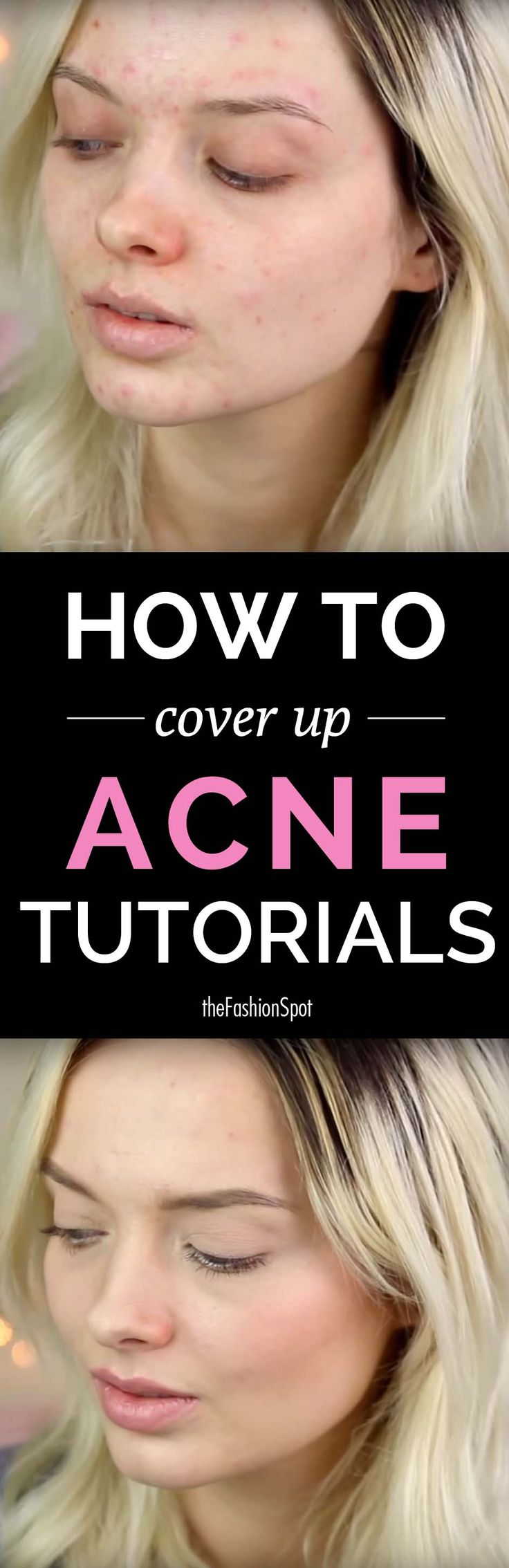 How to cover up acne