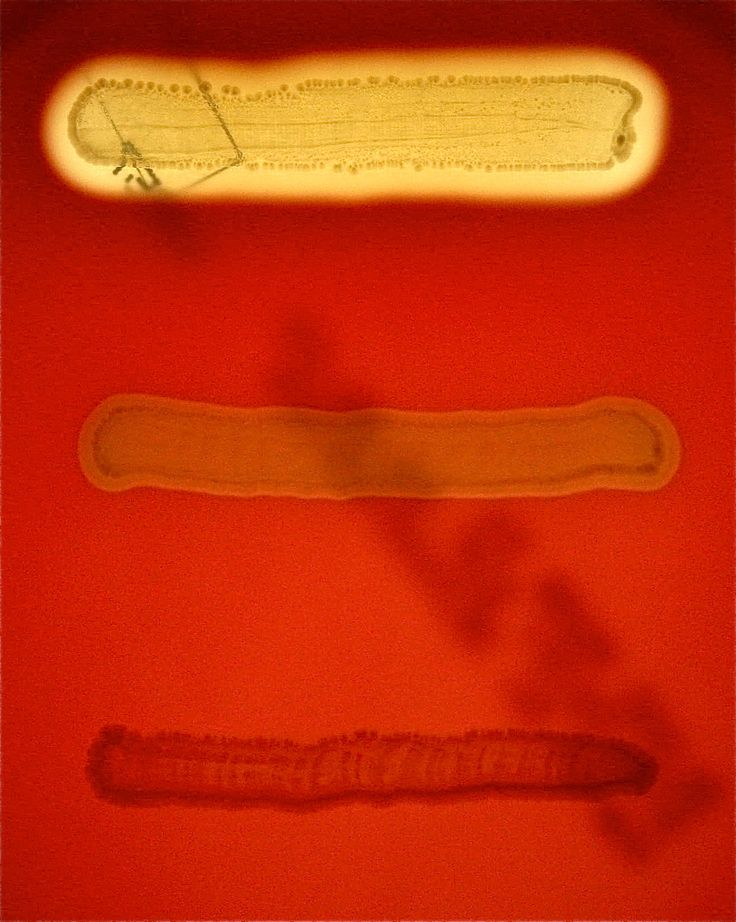 Three organisms inoculated onto blood agar, straight line inoculation, to demonstrate hemolysis. From top to bottom: Streptococcus pyogenes: beta, complete lysis of red blood cells, clear area around colony growth. Streptococcus bovis: alpha, incomplete lysis of red blood cells, green area around colony growth. Enterococcus faecalis: gamma, growth with no blood cell lysis. Image taken using transmitted light.