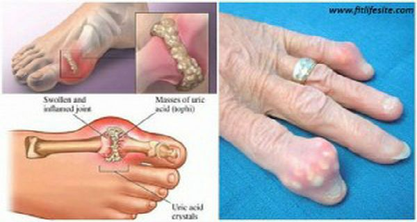 How To Quickly Remove Uric Acid Crystallization From Your Body To Prevent Gout And Joint Pain – DIY Hilfe