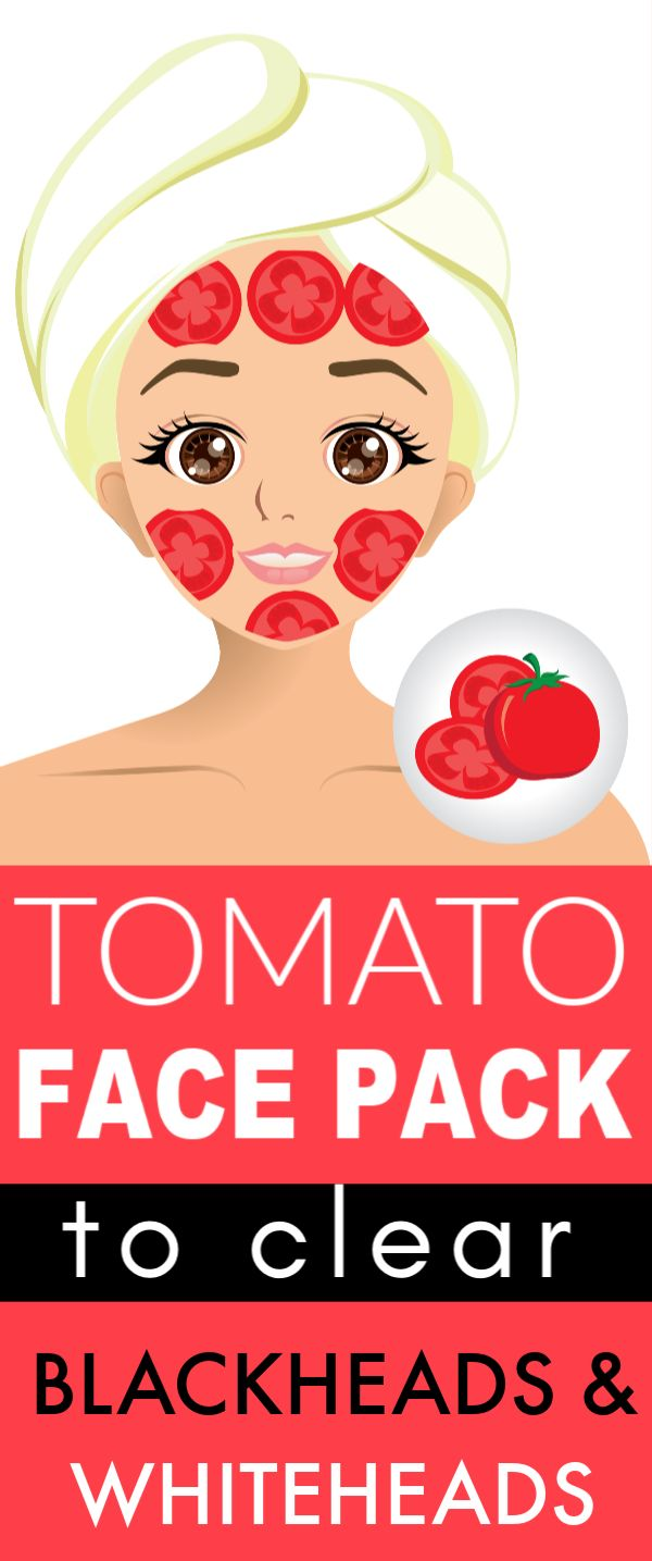 Tomato is a magical ingredient to remove blackheads & whiteheads from your face