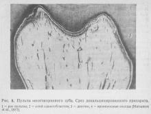 Пульпа многокорневого зуба.  мокрый подбородок (от боли кролик не может глотать слюну), которое, возможно, представляет собой исходный материал для образования основного вещества дентина. Коллагено-вые волокна пульпы имеют обычное строение. Макрофаги распространены по всей пульпОни особенно хорошо видны при введении в кровь подопытным животным коллоидных красителей (трипановый синий, тушь).  Они располагаются рыхло в виде отдельных волокон, не образуя пучков, Г. Мехтейсом (193Было доказано…