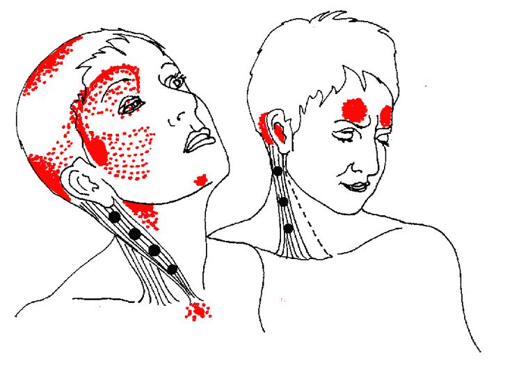 "Sternocleidomastoid Pain  When the SCM is strained or shortened the muscle itself rarely hurts, no matter how stiff or tight it may be. Problems are referred elsewhere, to head and neck, ears, eyes, nose and throat....  Sternal Division (left): Head pain, ""sinus"" pain, visual disturbances, ""sore throat,"" difficulty swallowing, dry cough.     Clavicular Division (right): Autonomic and proprioceptive disturbances; frontal ""sinus"" headache..."