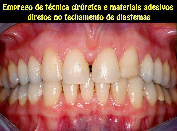 Emprego de técnica cirúrgica e materiais adesivos diretos no fechamento de diastemas | OVI Dental