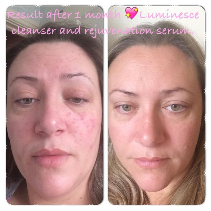 Acne or acne scars?? Luminesce Serum is for YOU! Because of the human growth factors, the serum regrows skin.. a more long lasting result!