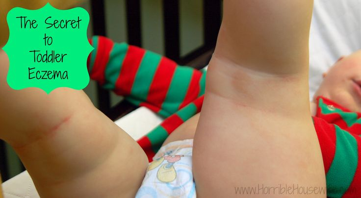 Read this post if you have a child with eczema! I finally found a product that helps with toddler eczema!