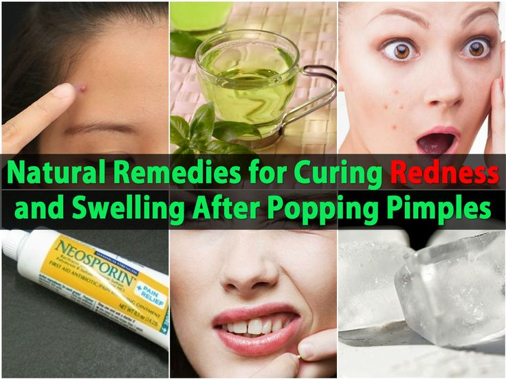 Popping a pimple is never recommended. Not only can it spread the bacteria that causes pimples, it can leave major redness on your skin. If you have popped a pimple and you notice redness, swelling and soreness, there are a few things that you can do to eliminate them. First, you can try an ice...