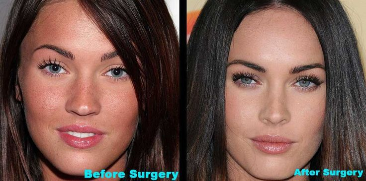 celebrities before fame | MEGAN FOX BEFORE & AFTER SURGERY PHOTOS