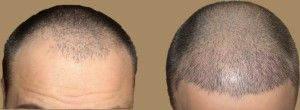 Around 70% of people (men and women) around the world are dealing with this major-common problem of hair fall. It will impact on everyday life, agree? Well, after striving for years, experts have come up with this latest FUE or Follicular Unit Extraction procedure which is more acceptable today because of its no scar feature. Wondering how come? Well, I'll answer all the frequently popping-out questions in your mind.