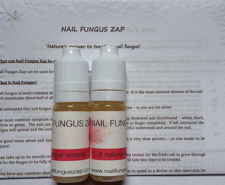 Nail Fungus and Fungal Nail Infections Treatment - Nail Fungus Zap