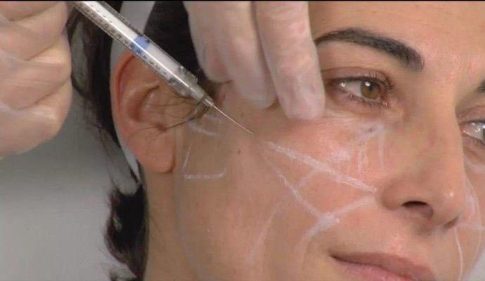 Нити против морщин и дряблости кожи. Процедуры с использованием нитей уход за лицом | Colors.life