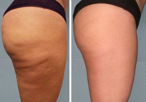 3 Easy Steps to Get Rid of Cellulite Naturally – Fast Results