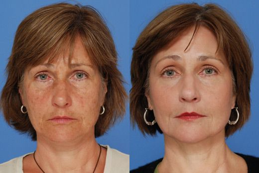 Interesting Co2 Laser Resurfacing