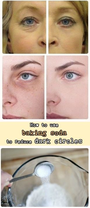 You can get dark circles if you don't sleep well, if your diet is not proper or because of prolonged fatigue. Also, dark circles can appear from serious problems, such as anemia, that is caused by iron deficiency. There are many ideas that can help you get rid of dark circles, but many don't work …