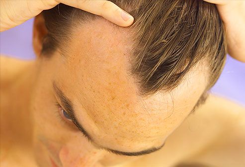 Pictures of What Your Hair and Scalp Say About Your Health: Dandruff, Brittle Hair, and More