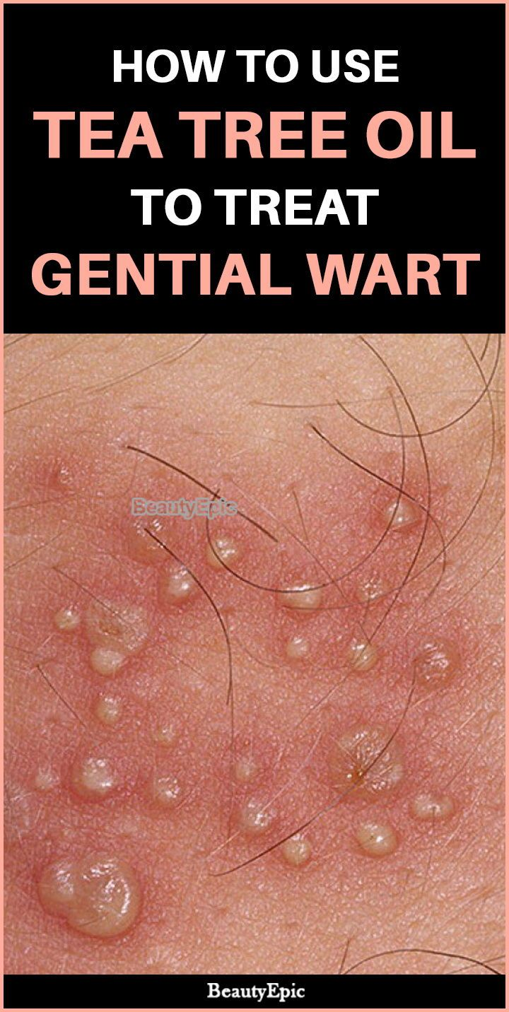 hpv warts causes)
