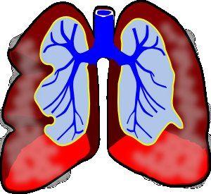 Lung Disease Clipart LDC10