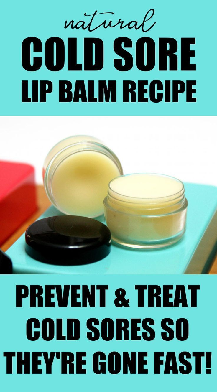 Cold Sore Therapy Lip Balm Recipe That Really Works Best Cold