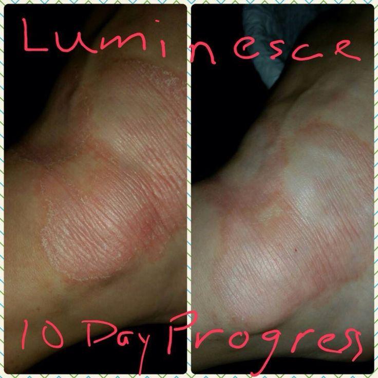 Luminesce Cellular Rejuvenation Serum progress over 10 days. www.facebook.com/removeyears