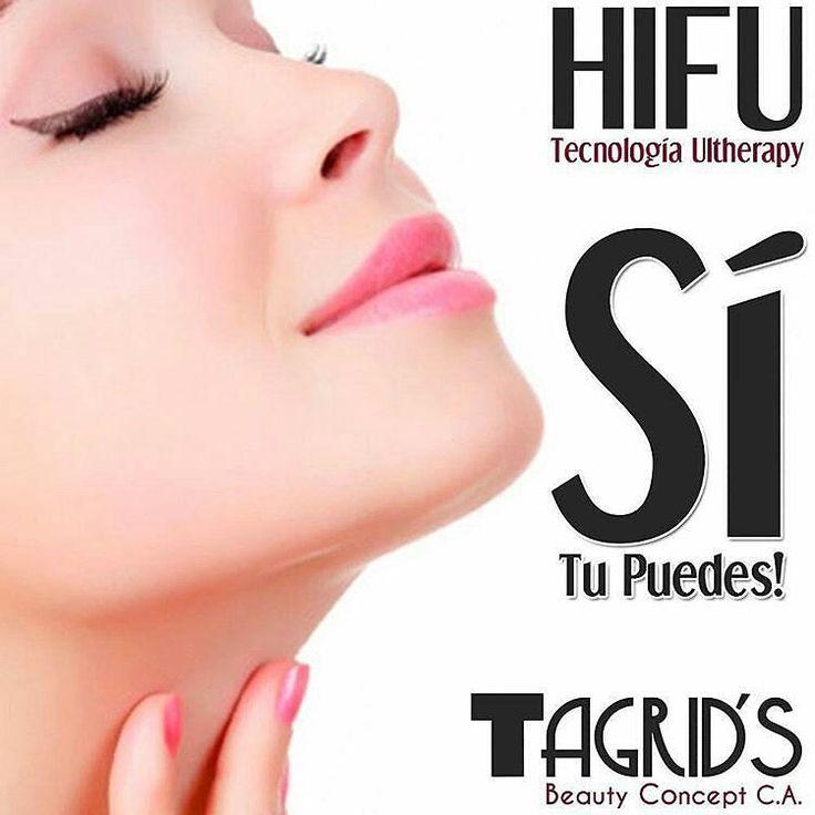 Lifting facial sin Cirugía HIFU con la tecnología Ultherapy. . Con aplicaciones de 30 a 90 minutos y no se indica reposo inactividad ni cuidados posteriores. Es el único procedimiento no quirúrgico que trata específicamente las capas profundas de la piel sin cortar o lesionar su superficie. . El tratamiento más reconocido en los Estados Unidos esta tecnología desencadena que la energía de la respuesta natural del organismo esto permite estimular la formación de colágeno para fortalecer la…