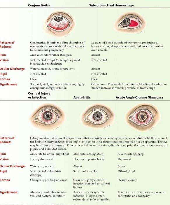 "DDX for patient presenting with ""red eyes"""