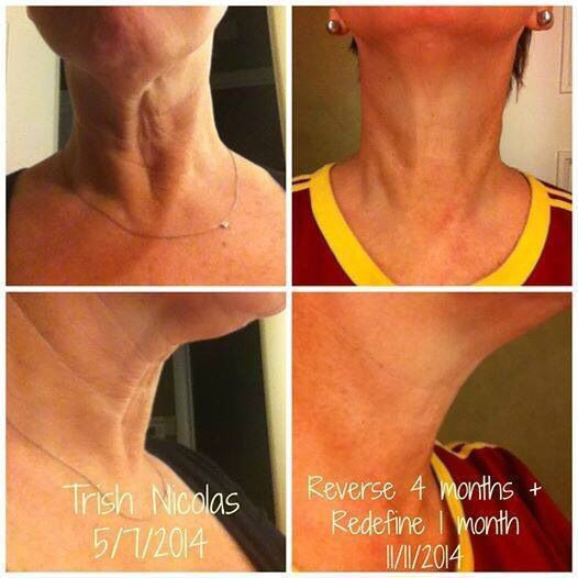 It's almost THANKSGIVING. Take a look at these before and afters from a fellow Rodan + Fields consultant. The turkey neck...Gone! AMAZING! She is one thankful woman this Thanksgiving....thankful for Rodan and Fields!!