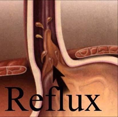 Treatment for ACID REFLUX/HEARTBURN, using doTERRA's Certified 100% Pure Therapeutic Grade essential oils and essential oil blends: *Drink 1-2 drops of peppermint essential oil in12-16 oz of water. *Rub 4-5 drops of DigestZen essential oil blend on stomach area. *Drink lemon essential oil in water every day to reduce acid in the stomach, the lining of the throat, and the esophagus. by Julie Cavalier