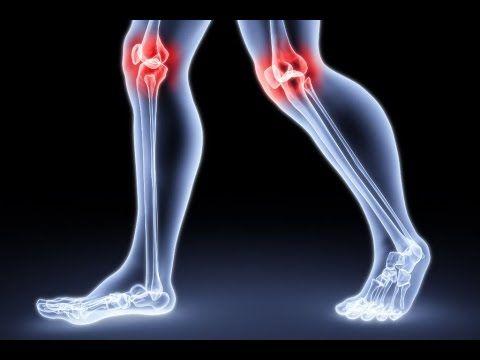 Больное колено, артроз или артрит коленного сустава - лечение и профилактика - YouTube