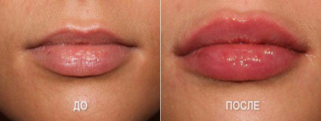 коррекция формы губ. Губы до и после укола гиалуроновой кислотой