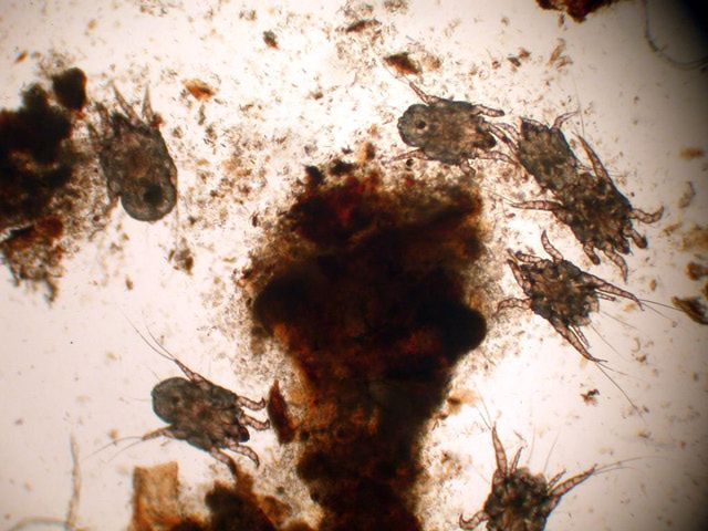 How Do I Know if My Pet Has Ear Mites?: Otodectes cynotis - ear mites and debris. Image (taken through microscope) of ear mites sampled from a cat's ear.