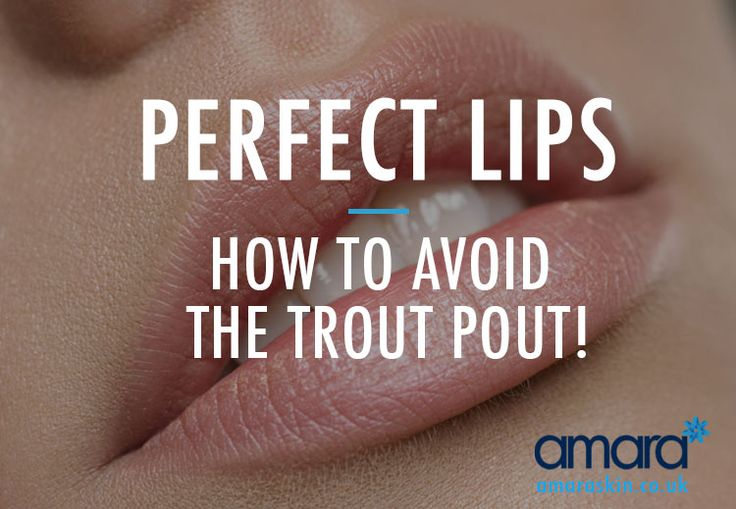 Perfect lips are wanted by most but it's important to avoid the trout pout! Check out before & after photos of a lip filler treatment with no trout pout!