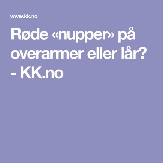 Røde «nupper» på overarmer eller lår? - KK.no
