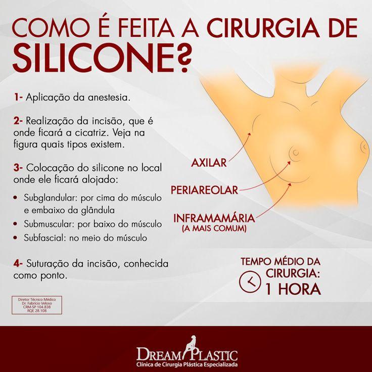 A cirurgia de prótese de silicone é uma das mais realizadas no mundo, mas você sabe como ela é realizada? Confira na imagem os passos para ter silicone nos seios.