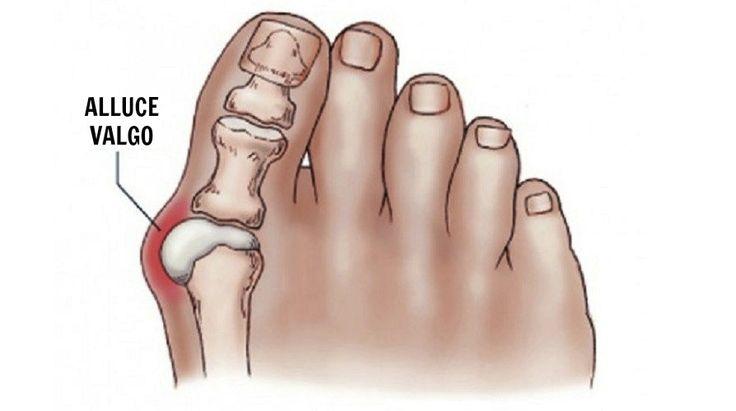 Dolore e reparto di petto di una spina dorsale