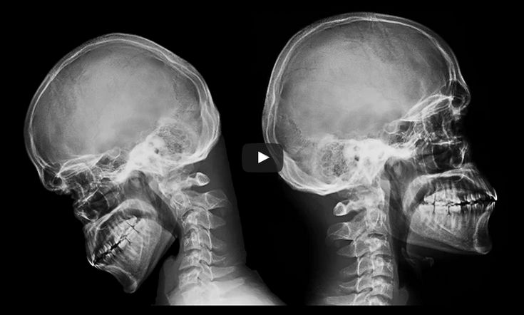 Here's what texting actually does to your neck.